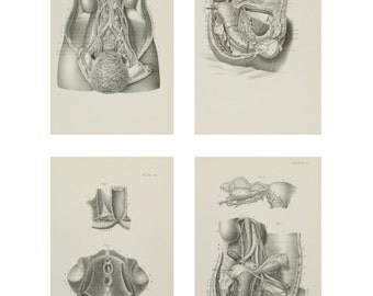 Anatomical Prints - Female Pelvic Organs - 1880's Medical Drawings - Plates - Engravings - Set of 4