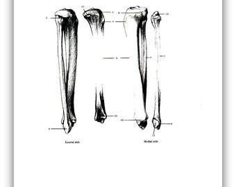 Human Bones - Long Bones 2  - 1975 Vintage Anatomy Print -  12 x 9