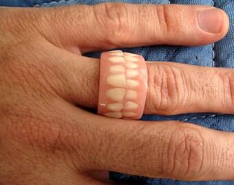 Denture Ring