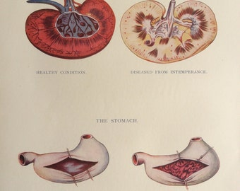 Vintage 1920s Print Human Anatomy Illustration Kidneys Stomach Organ Dissection Diagram Medical Effects Of Alcohol On The Body