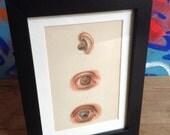 Antique eye disease lithos