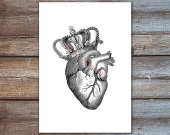 Anatomical Heart with Crown Wall Art, human heart art