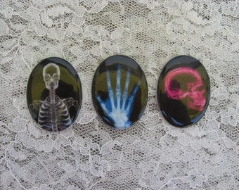 Set of 3 X Ray Skeleton Cabochons X Ray Skeleton Cameos Super Unqiue X Ray Cabochons 30x40 Unset Cabochon