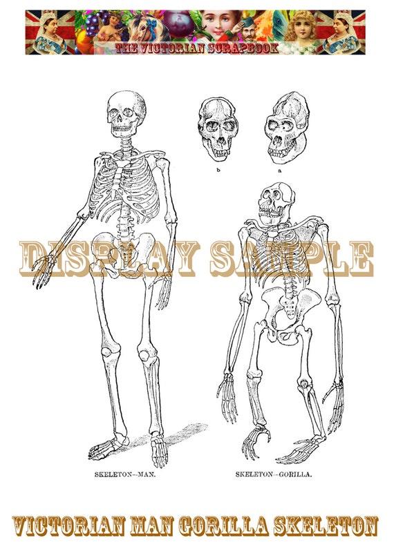 Victorian Man Gorilla Skeleton Comparison by ...