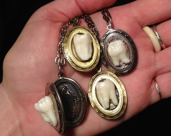 YOUR TOOTH Made Into A Locket Pendent Necklace