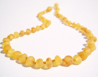 Raw Unpolished  Honey  rounded beads Baltic Amber teething necklace for your baby . Pain Relief effective.