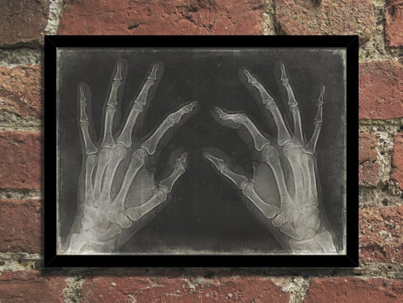 Steampunk Art Print Vintage Medical Hands X Ray By