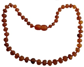 Baltic Amber Adult Necklace - Pain Relief From Carpel Tunnel -Anti-inflammatory - Headache Relief - Arthritis Relief