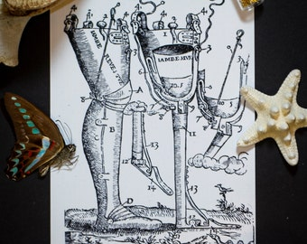 Prosthetic Leg Illustration: Vintage 5X7 Print