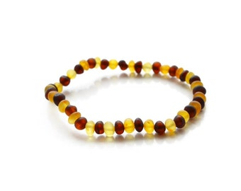 Genuine amber bracelet Raw Unpolished Cherry yellow Beads 18 cm (7,1'') Baltic amber bracelet from Lithuania 4244