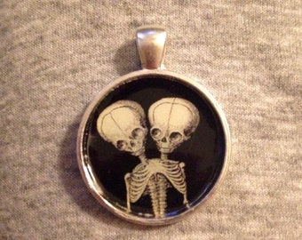 Siamese Twin Skeleton Image Pendant Necklace-FREE SHIPPING-