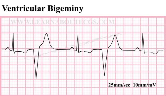 Ventricular Bigeminy Rhythm Ventricular Bigeminy Ecg Strip