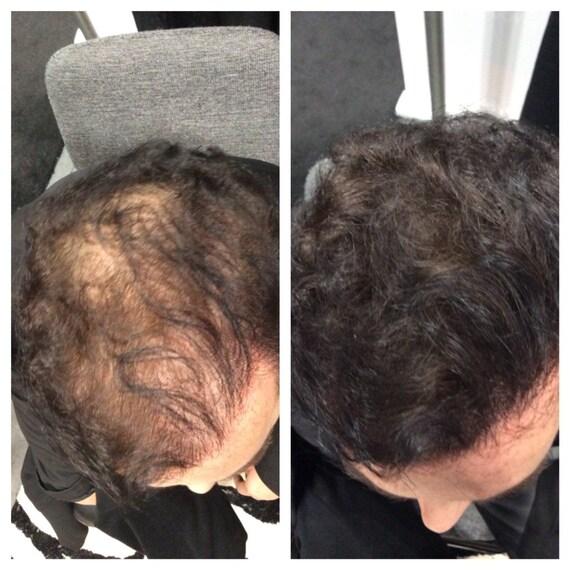 Diy Hair Treatment For Loss: DIY Hair Building Fibers Hair Loss Concealer For By