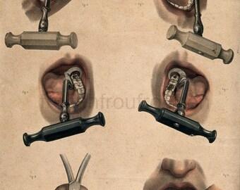 antique french victorian illustration dental instruments illustration anatomical print DIGITAL DOWNLOAD