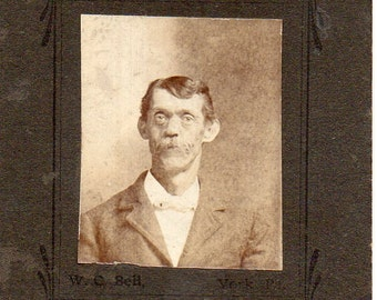 Odd Antique Photo of Man with Disfigurement?
