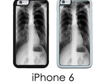 iPhone 6S 6 or PLUS Xray Chest X Ray Medical Chart Medical Student Lungs Trim Choice Hard Case , Rubber or Mighty Case