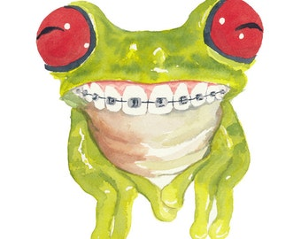 Tree Frog Watercolor PRINT - 11x14 Print, Cute Frog, Children's Art, Frog With Braces