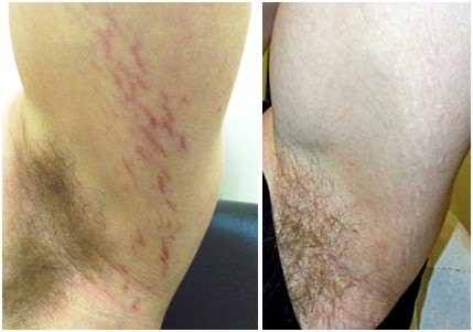 Heal Red Purple Stretch Marks With By Greenskinorganics On