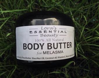 Body Butter for Melasma. All natural, vegan
