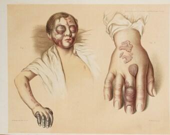 1878 Antique Anatomy Print in Colour - Skin Diseases, Anatomical Print
