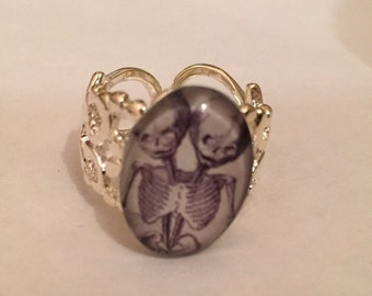 Semise twin skeletons