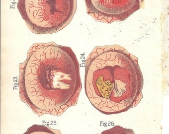 Antique Medical Illustration Digital Download Ulcers