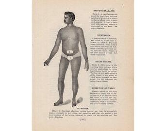 1901 MALADIES original antique medical anatomy