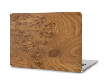 MacBook Pro #WoodBack Real Wood Skin - Carpathian Elm Burl (FREE and Fast Delivery)