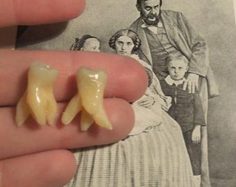Tooth oddity- 2 molars