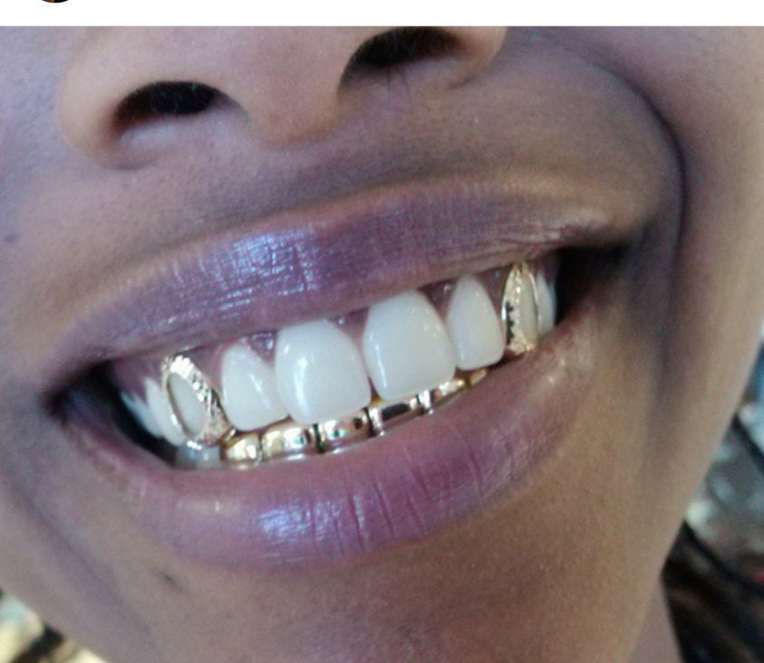 Related Keywords & Suggestions for open face gold teeth