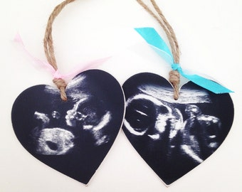 Beautiful ultrasound scan on a wooden heart. Perfect baby shower gift.