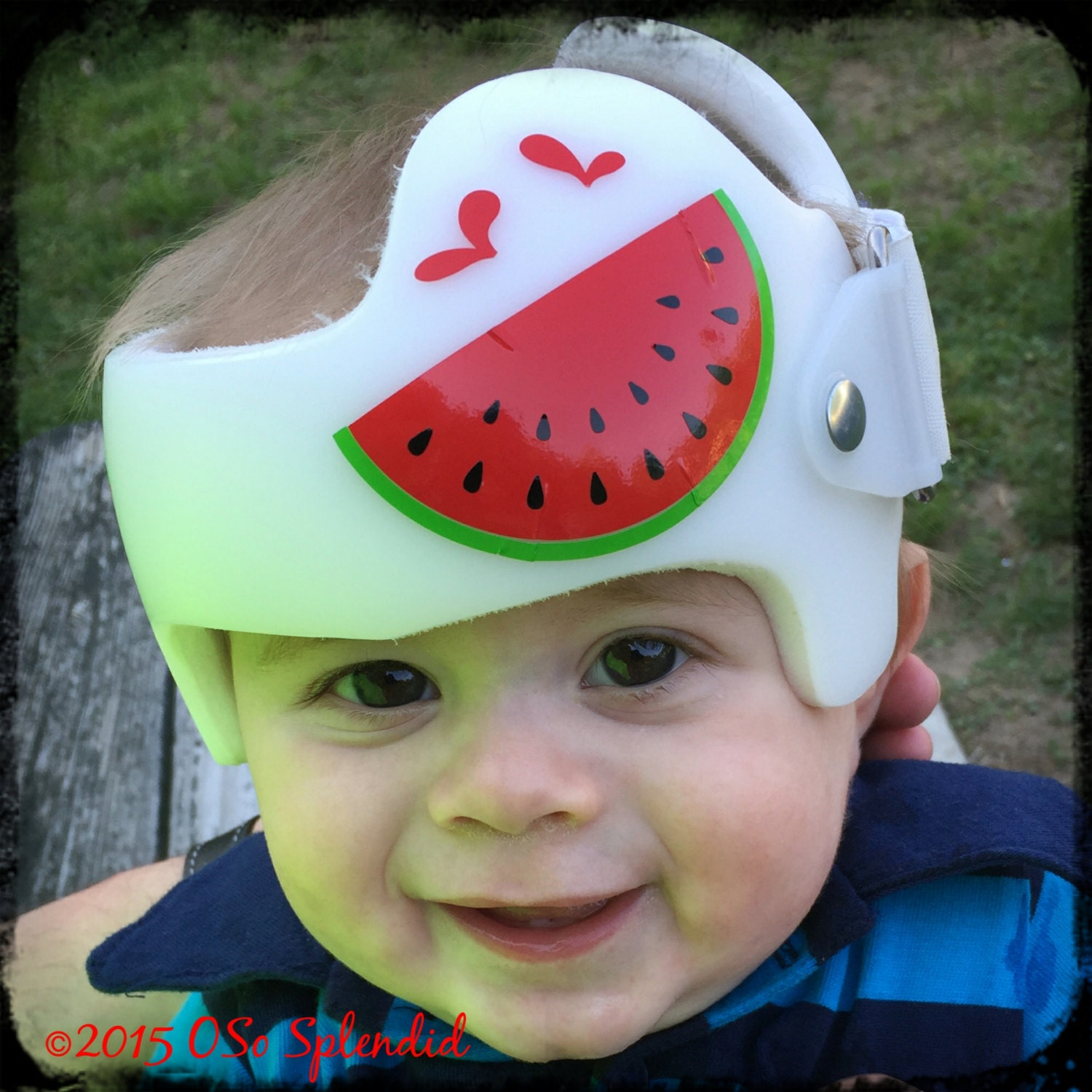 Personalized Cranial Band Just Fixin My Melon - Baby helmet decalsa family blog that takes you through the experience of a baby with