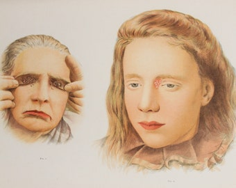 1902 Antique Medical Print in Colour - Skin Diseases, Rashes, Ulcers, Sores, Face, Anatomical Print