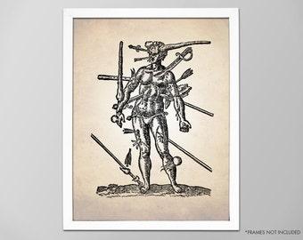 Wounds Man Human Anatomy Art Print, Human Anatomy Illustration, Wounds Man Surgical Illustration, Medical Surgery Print, Human Anatomy Print
