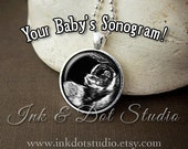 Custom Sonogram Necklace, Ultrasound Pendant, Pregnancy Keepsake, Pregnancy Announcement From Your Sonogram!