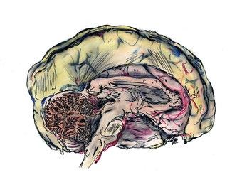 Brain-iac