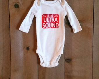 As seen on ultrasound onesie