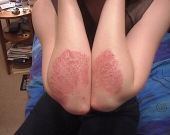 Psoriasis and Eczema Salve