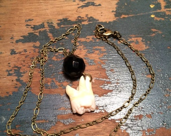 The Mourning Molar Real Human Tooth Necklace and Jet Mourning Bead