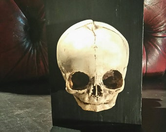 Skull bookend of fetus