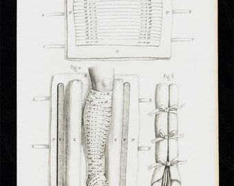 1858 Antique bizarre MEDICAL print. fractures in the leg, bandages,