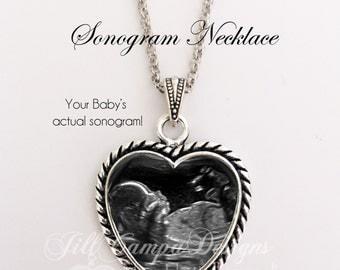 SONOGRAM NECKLACE, baby sonogram necklace, ultrasound necklace, Ultrasound Pendant, Pregnancy, Sonogram jewelry, sonogram heart necklace