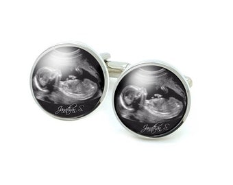 Sonogram Cufflinks, Ultrasound Baby Name Cufflinks, new daddy father cufflinks, New Baby Cufflinks, with or without name