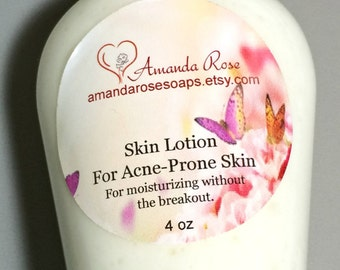 Moisturizing Lotion For Acne-Prone Skin, body lotion, light lotion, oily skin moisturizer, skin lotion