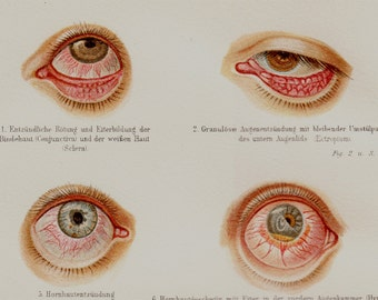 1889 BIZARRE VICTORIAN  ANATOMY lithograph, Eye, eyeball. original antique 125 years old amazing print