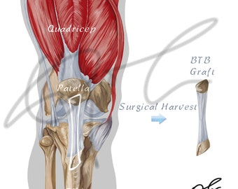 Bone patellar bone graft for ACL surgery - Printable Download, ACL reconstruction, ACL surgery, Btb graft, Human anatomy, Sports medicine
