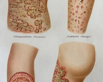 Vintage 1907 German SKIN CONDITIONS Psoriasis Medical Chromolithograph Anatomy Diagram Bookplate Dissection
