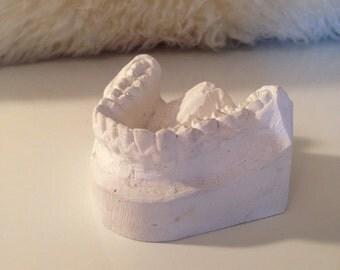 Vintage Ceramic Jaw // Vintage Dental Mold