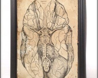 Medical Brain Illustration aged reproduction in frame.