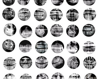 dental teeth x-rays digital collage sheet 1 x1 inch circles human anatomy digital images downloadable art graphics x-rays medical pictures